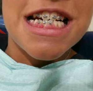 من انجازات عيادة تقويم وتركيبات الاسنان – حالة المريضه رنا
