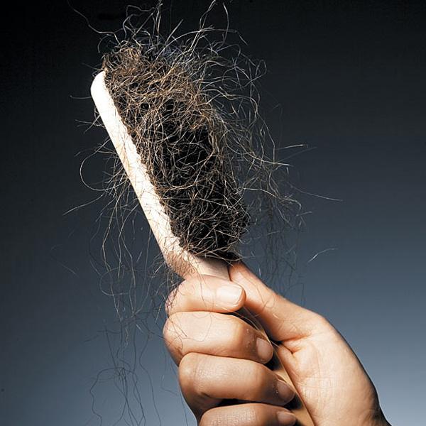 علاج تساقط الشعر بحقن البلازما