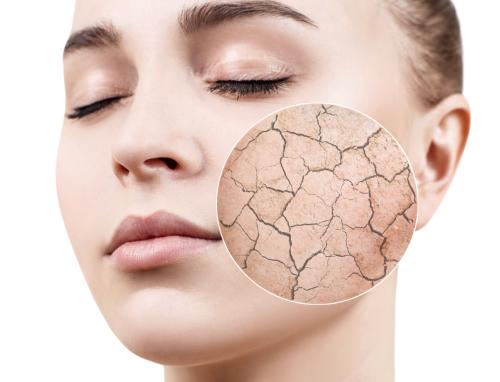 اسباب وعلاج جفاف الجلد