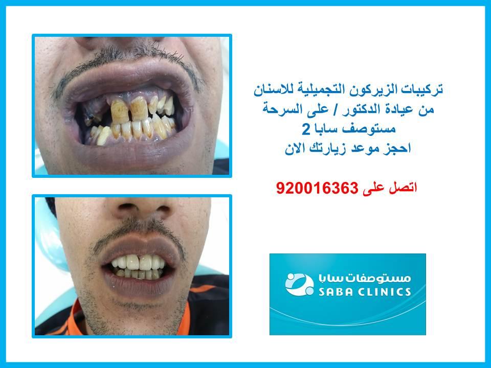 تركيبات الزيركون لتجميل الاسنان