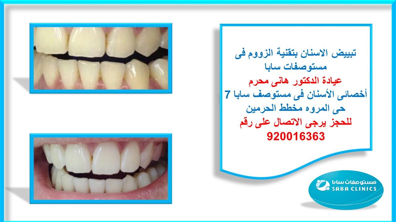 تبييض الاسنان بواسطة جهاز الزووم