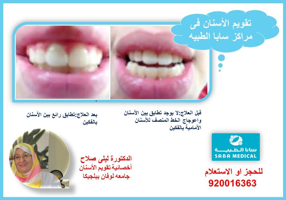 تقويم الاسنان وعلاج اعوجاج خط منتصف الفم