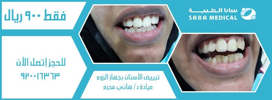 عرض خاص لتبييض الأسنان بجهاز الزووم