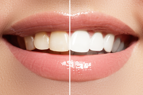 تبييض الاسنان بجهاز الزووم